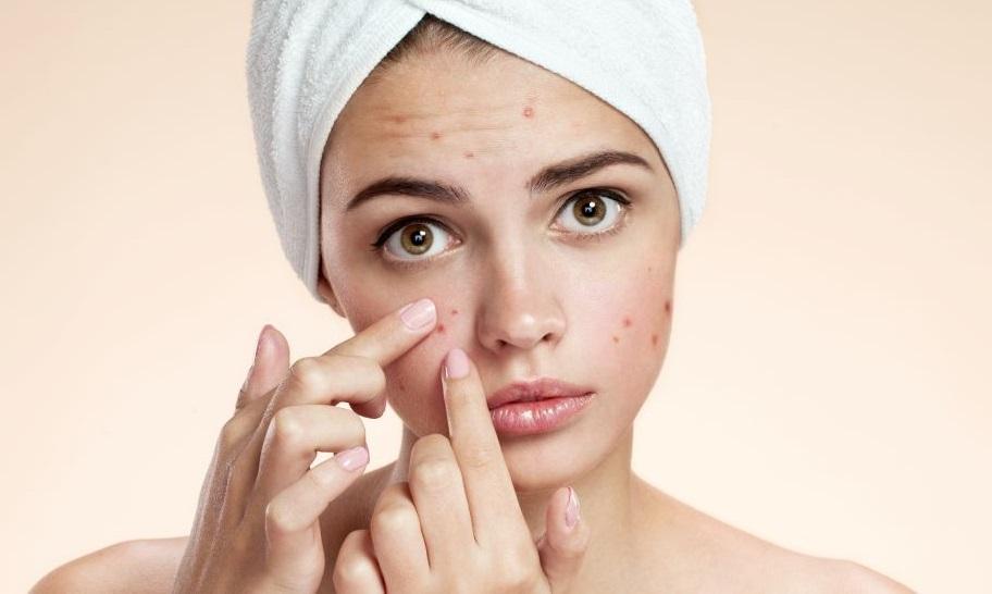 Top 10 remedii pentru acnee